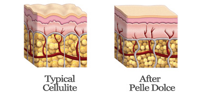cellulite treatments - cellulite cream